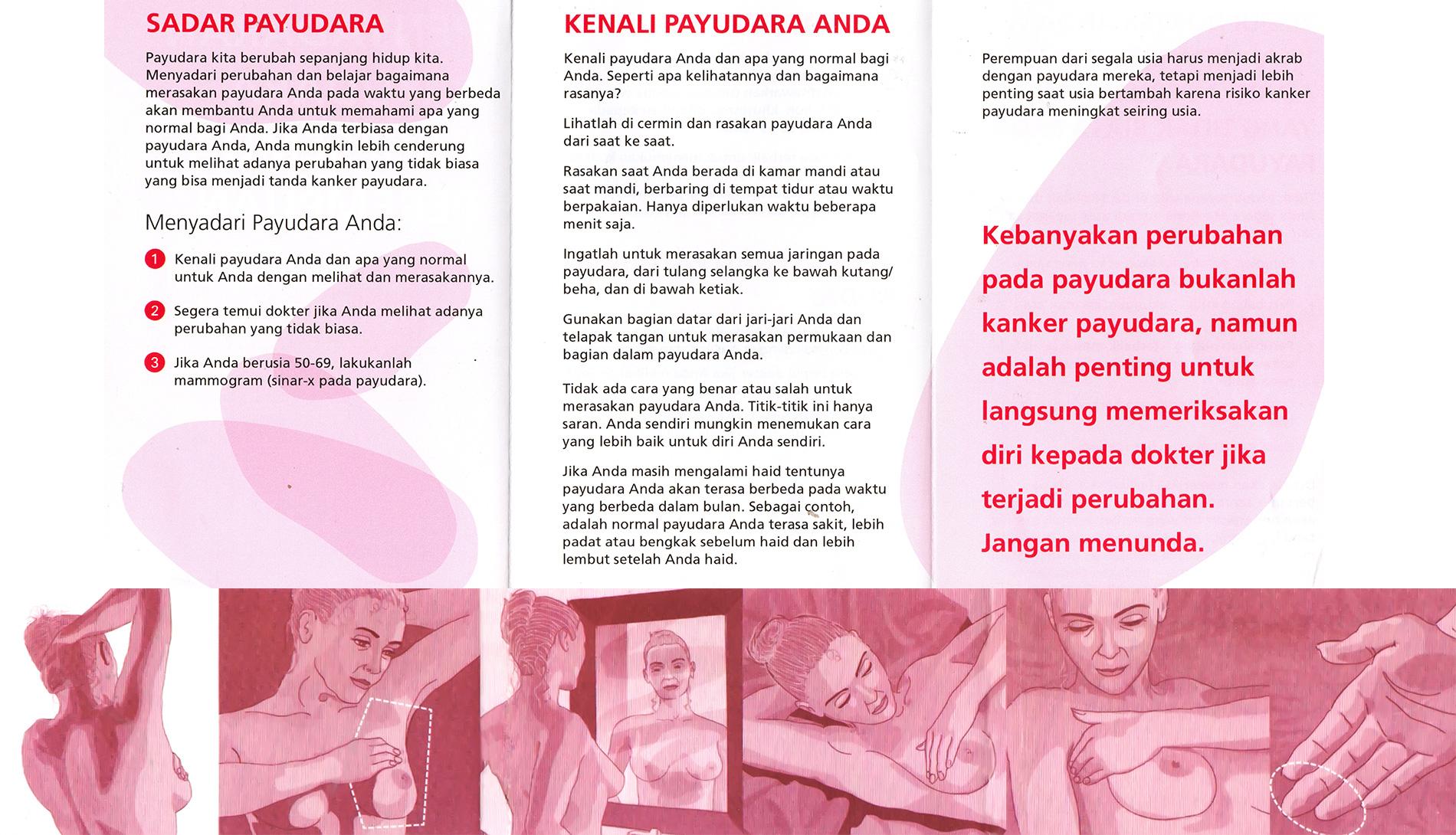 Bali Pink Ribbon 5 Tanda Kesadaran Payudara Bali Pink Ribbon